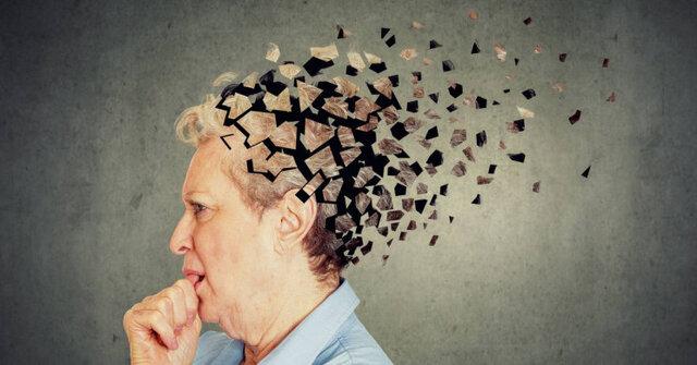 بدبینها بیشتر در خطر ابتلا به آلزایمر هستند